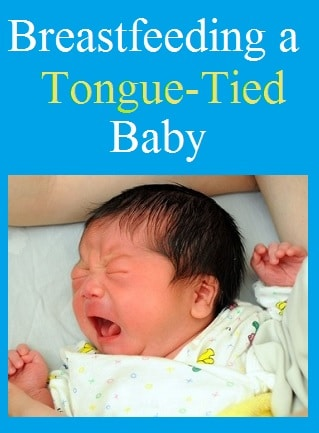tongue tied baby