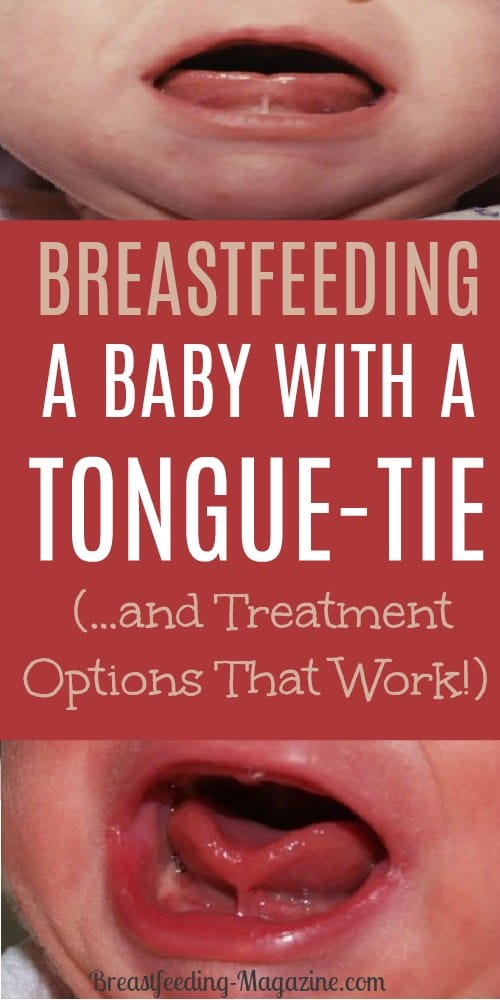 Frustrated? It may be that your baby is tongue tied and having trouble breastfeeding. How to know and what to do about it.