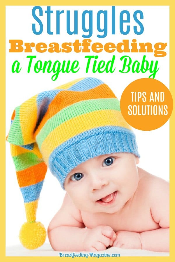 Struggles Breastfeeding a Tongue Tied Baby