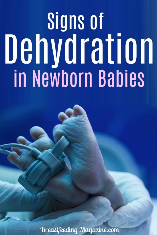Signs of Dehydration in Newborn Babies