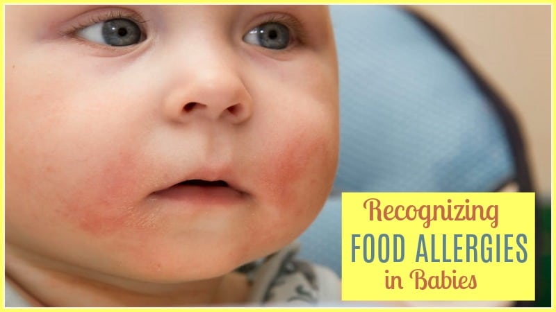 Food Allergies in Babies Who Breastfeed