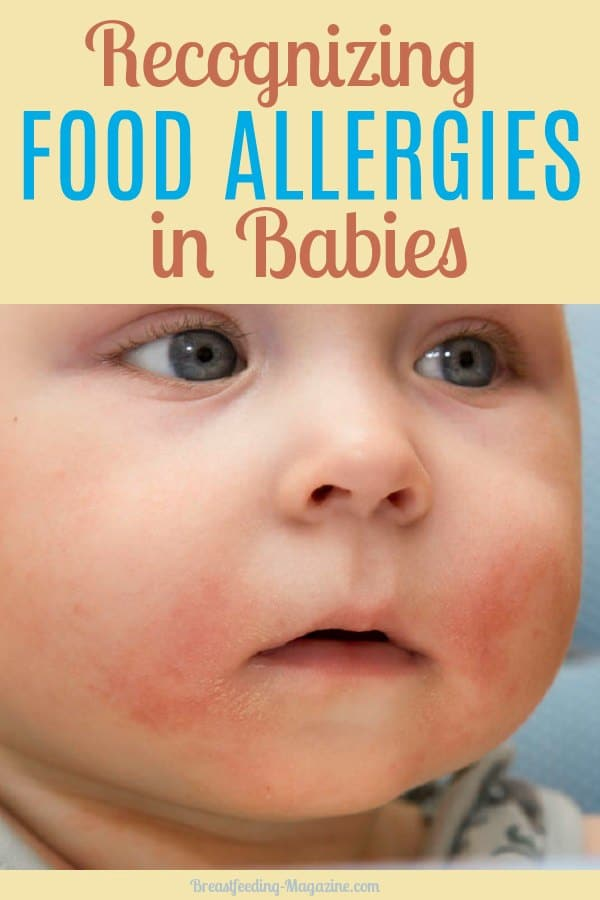Food Allergies in Babies Who Breastfeed - Common Signs and Solutions